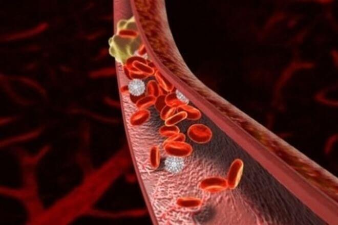 Смертельная опасность: причины образования тромбов и их лечение
