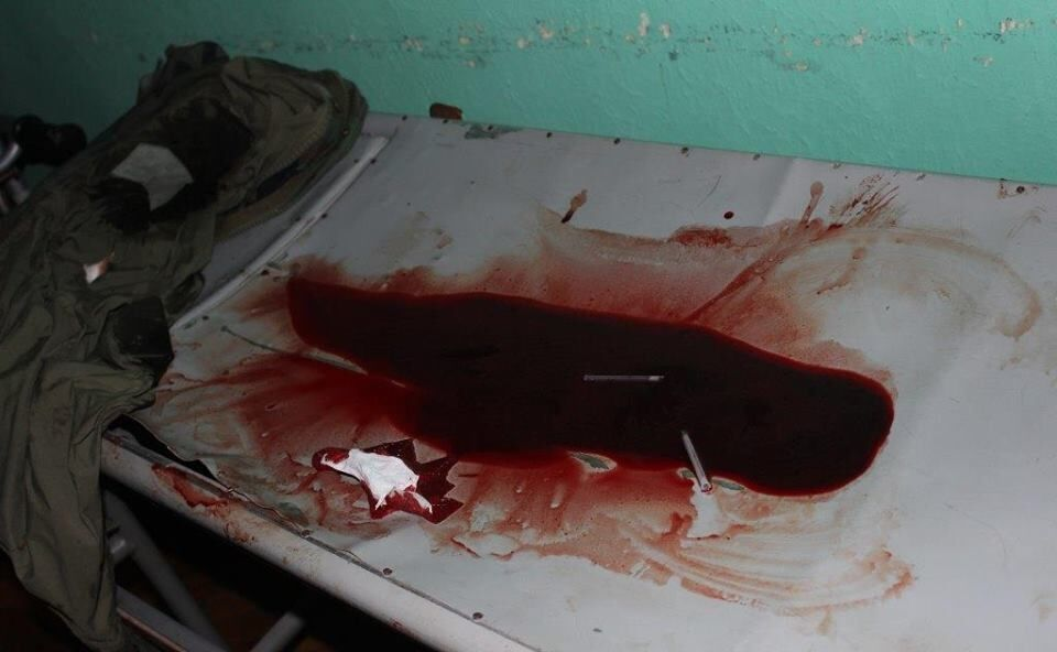 """Много крови и пострадавших: на Житомирщине произошла """"янтарная"""" перестрелка"""
