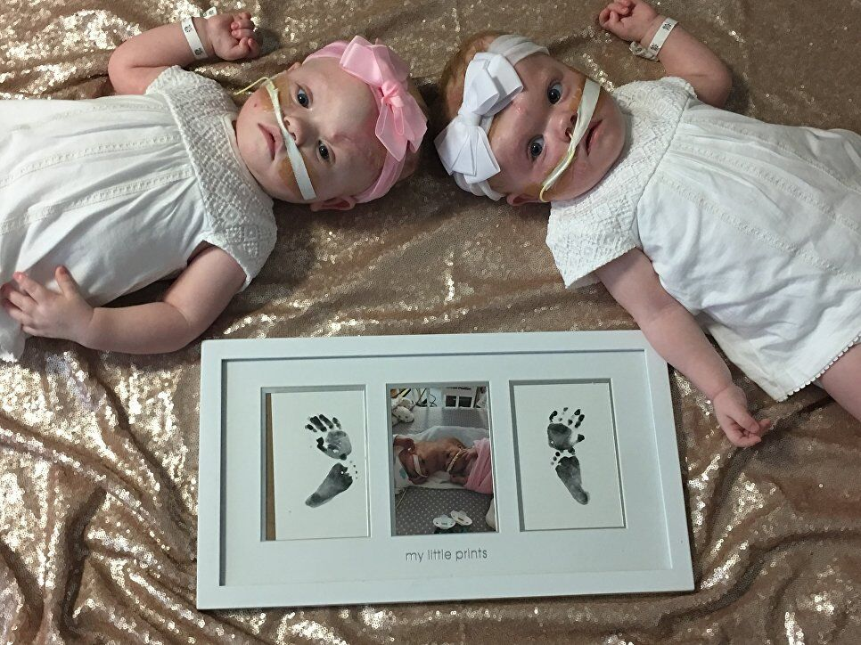 Сіамські близнюки