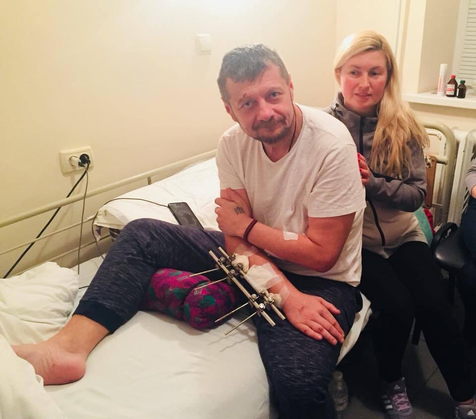 Нога майже оніміла: Мосійчук показав фото з лікарняної палати