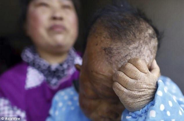 Йому 3 чи 30: невідома хвороба зробила з чоловіка маленьку дитину