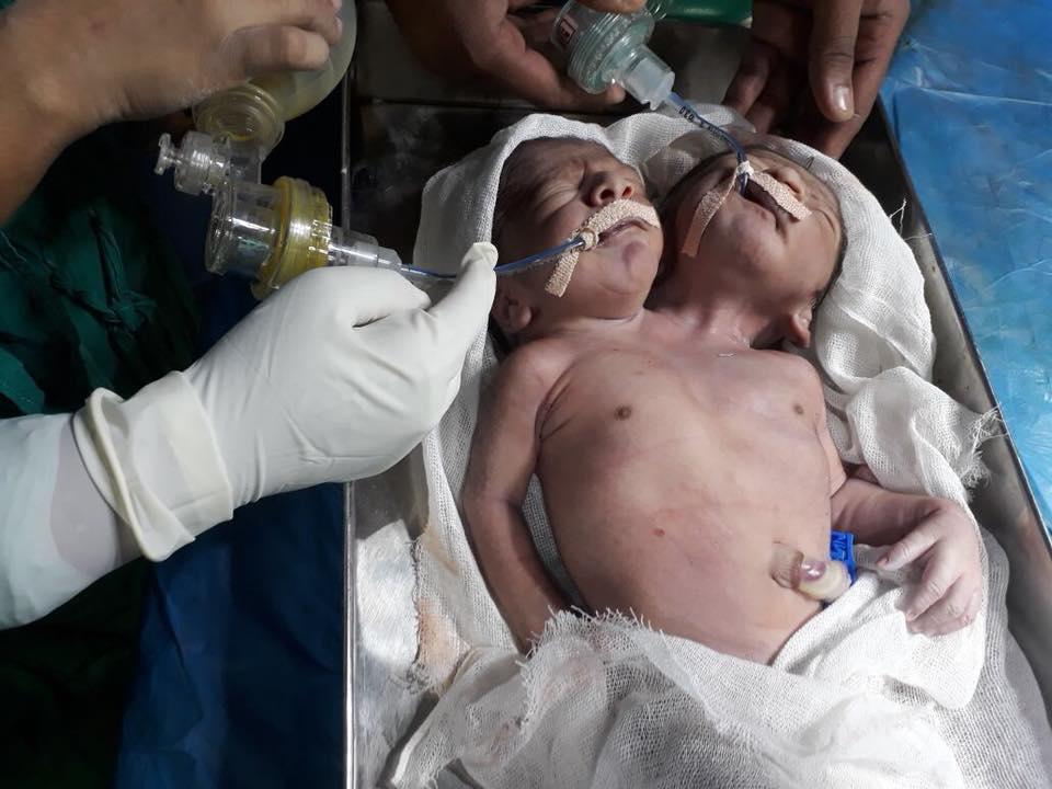 Дві голови на одне тіло: в Індії народилася чудо-дитина
