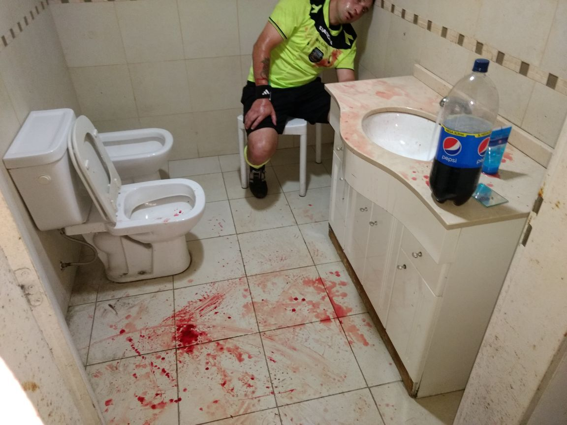 Бешеные фанаты пробили голову арбитру в чемпионате Аргентины: фото 18+