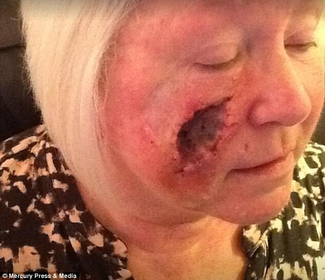 Діра в обличчі: розкрита смертельна небезпека улюбленої процедури жінок