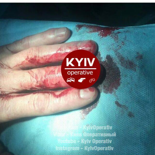 В Киеве совершили жестокое нападение на таксиста