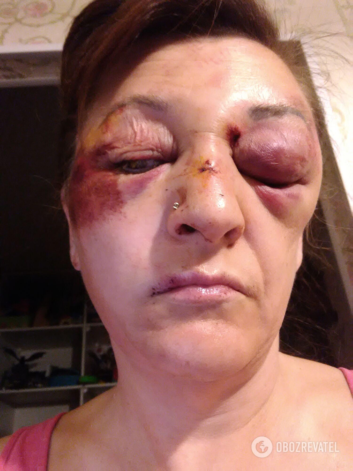 Наталья Проценко после избиения