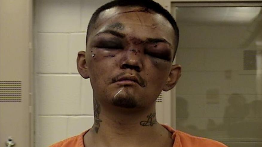Футболисты в США до неузнаваемости избили напавшего на них грабителя