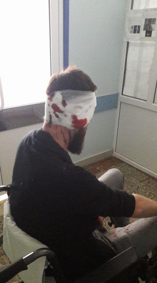 """""""Напали ззаду і добивали ногами"""": у Харкові жорстоко побили депутата"""