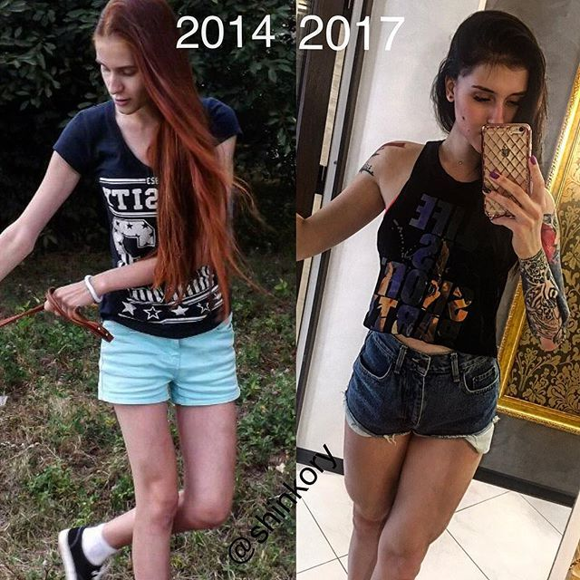 Больная анорексией после невероятной трансформации стала фитнес-тренером