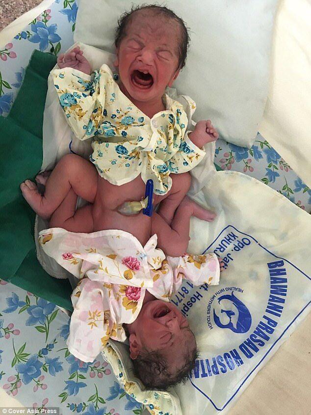 В Индии родились сиамские близнецы непонятного пола