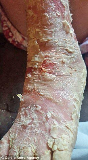 Здирати шкіру, щоб вижити: 9-річна дівчинка страждає від рідкісної хвороби
