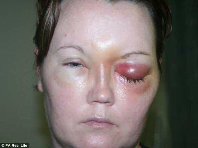 В оці щось повзало: контактні лінзи з здорової жінки зробили інваліда