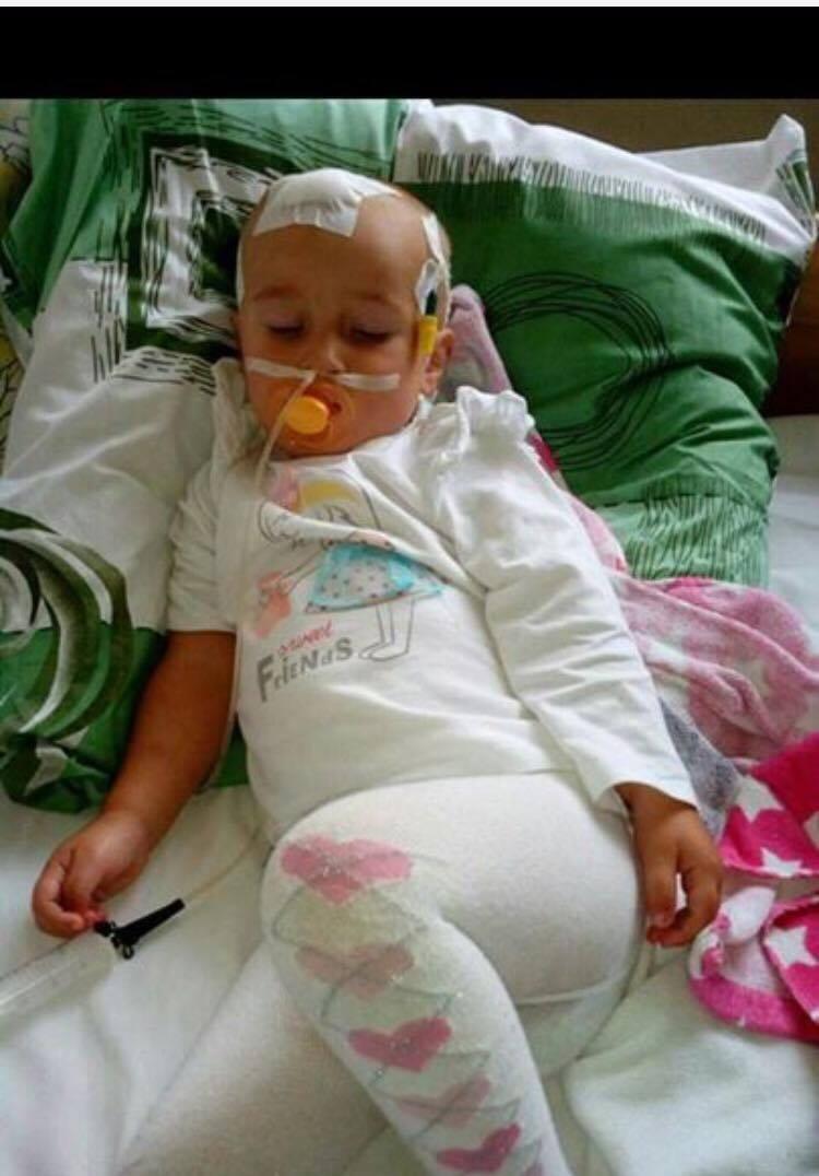 Потрібна допомога! Дворічна дівчинка бореться з раком мозку