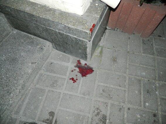 В Киеве пьяные подростки жестоко избили прохожего