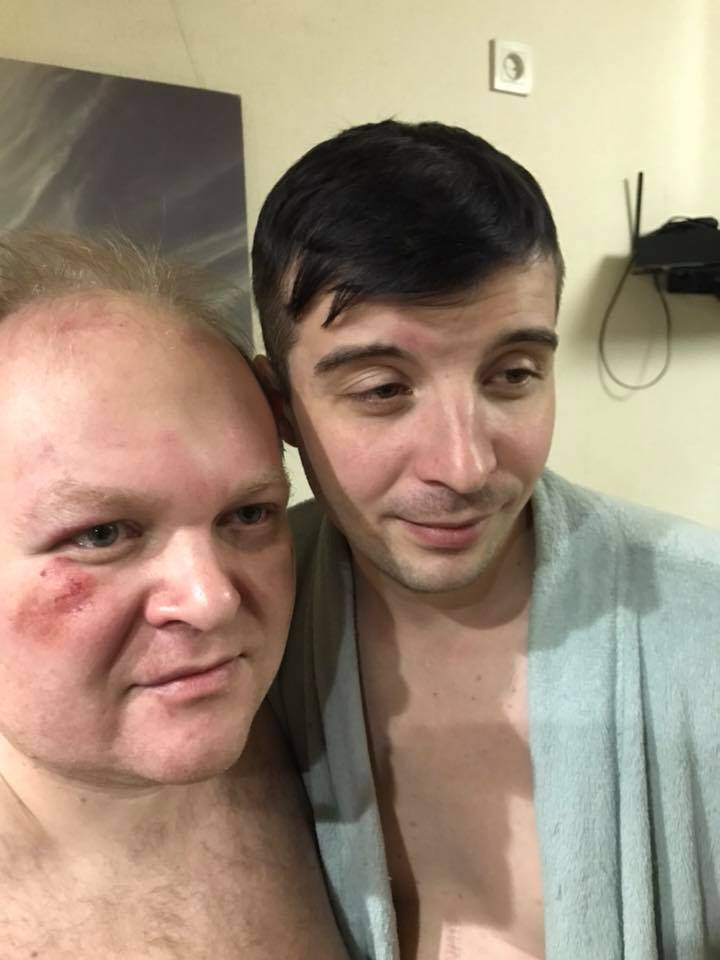 """В Киеве жестоко избили актеров """"Травести шоу"""""""