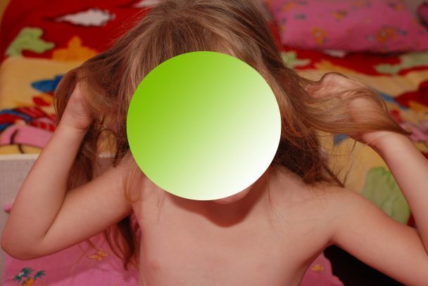 """""""У відкритій позі"""": у дитсадку Запоріжжя розгорівся скандал через фото оголених дітей"""
