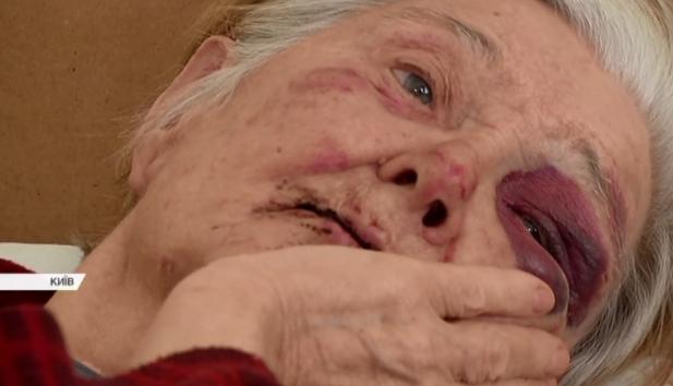 Пытали и рвали рот: в Киеве произошло зверское нападение на пенсионерку