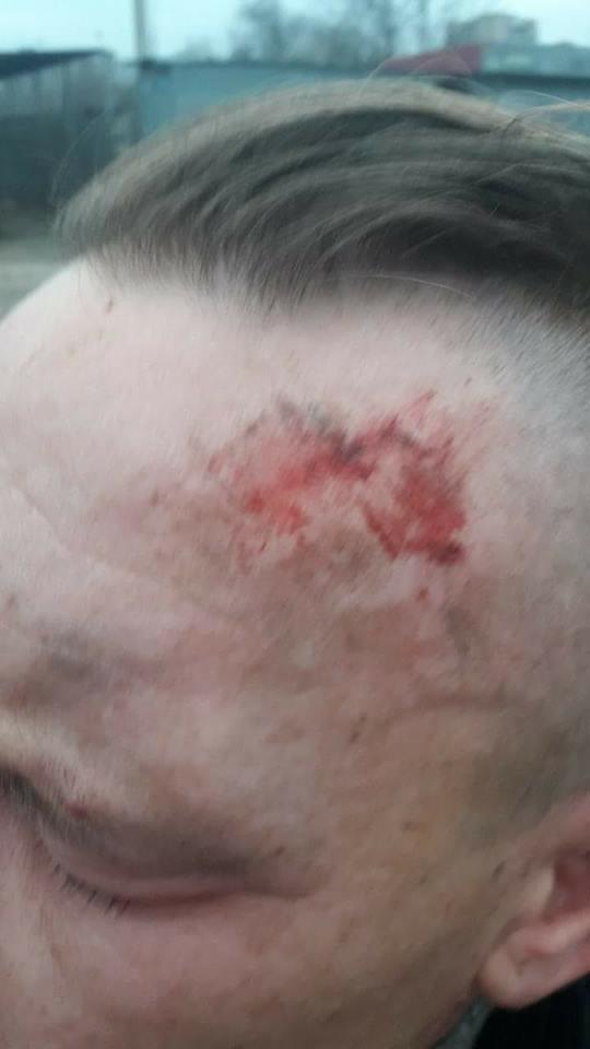 Отказ отпевать ребенка: у церкви УПЦ МП избили сочувствующих, полиция отреагировала