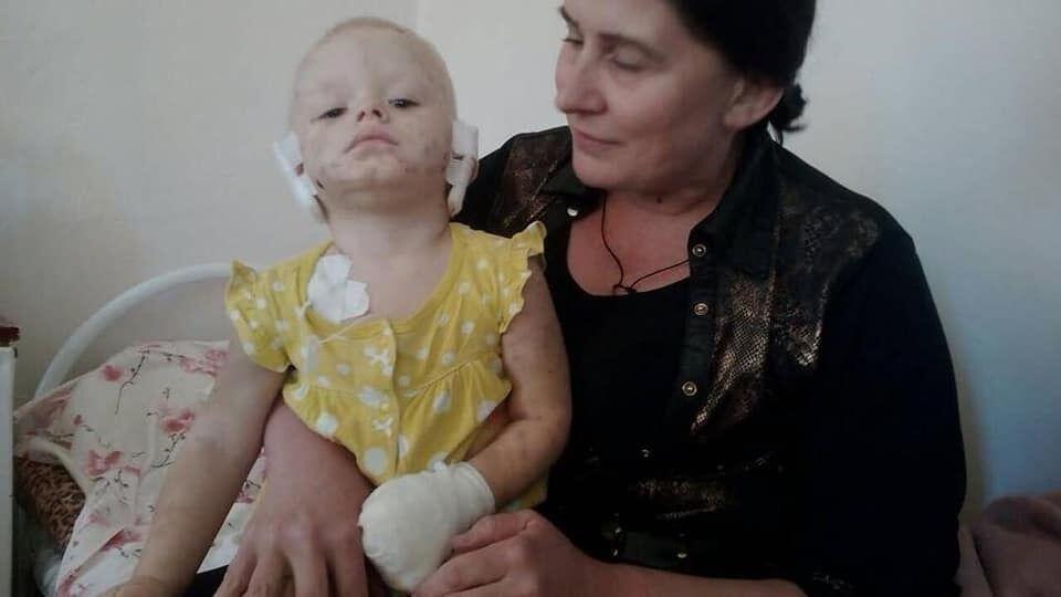 Собака отгрызла уши и пальцы: в Славянске произошло жуткое ЧП с ребенком
