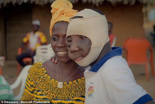 Подростку удалили огромную опухоль на лице: фото