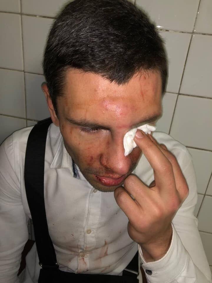 В Киеве жестоко избили соратника Ляшко
