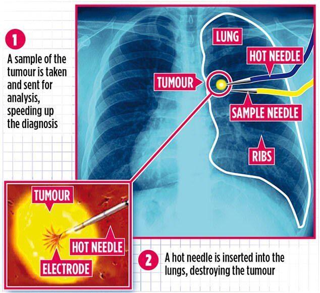 Медики начали лечить рак при помощи уколов