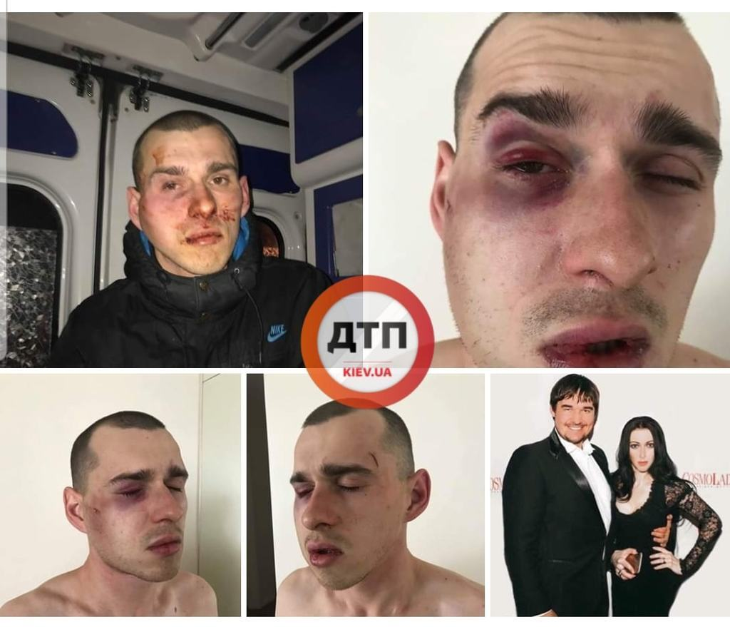 ''Били і погрожували розправою'': у Києві екстрасенс втрапила у скандал