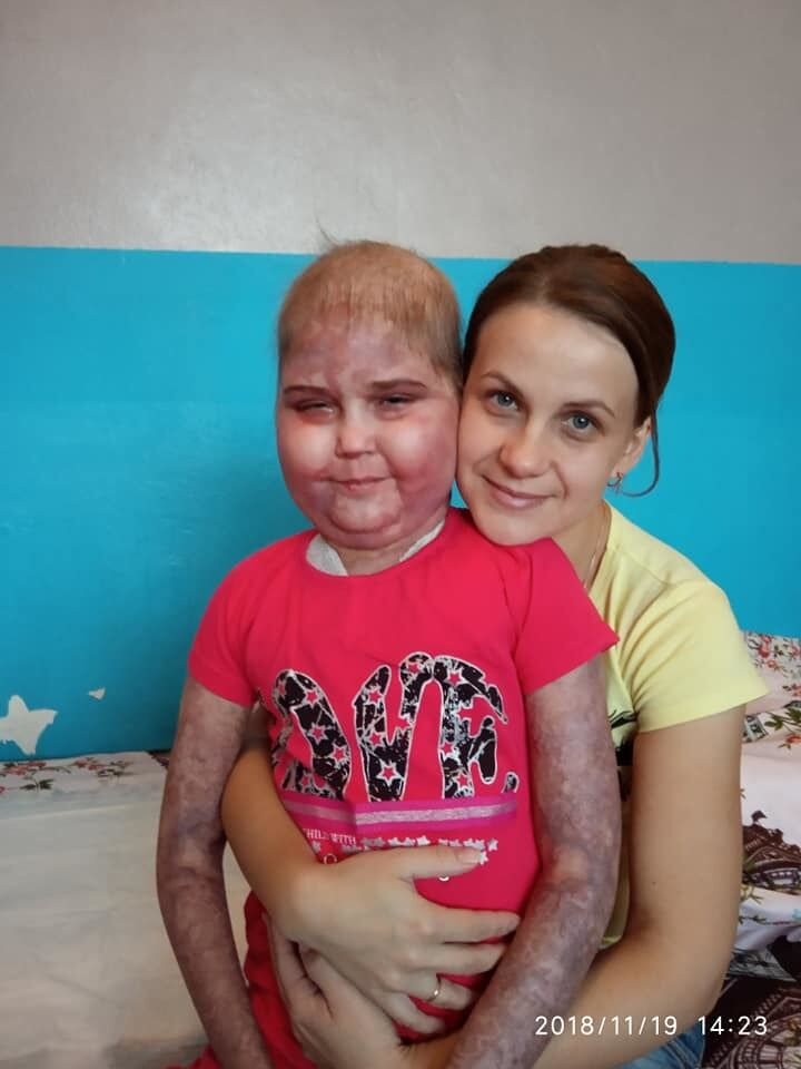 В Киеве ребенка с раком выставляют на улицу, больница отрицает