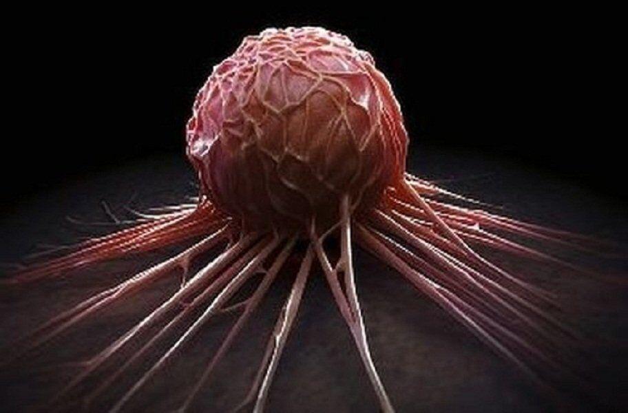 Названы четыре профессии, вызывающие рак