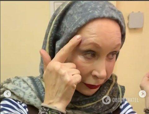 Тетяна Васильєва отримала травми в метро Москви
