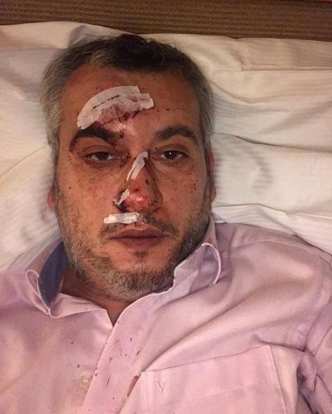 ''Так сделают во всем мире'': российского пропагандиста вышвырнули из больницы в Германии