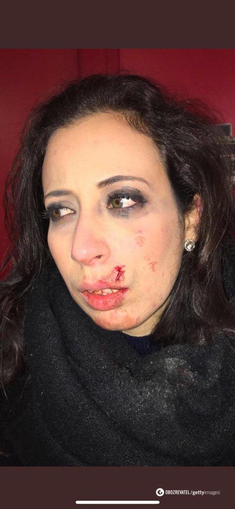 Российскую пропагандистку избили во Франции: появилось первое фото