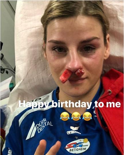 """""""Найкращий подарунок в житті"""": віце-чемпіонці світу зламали ніс на день народження"""