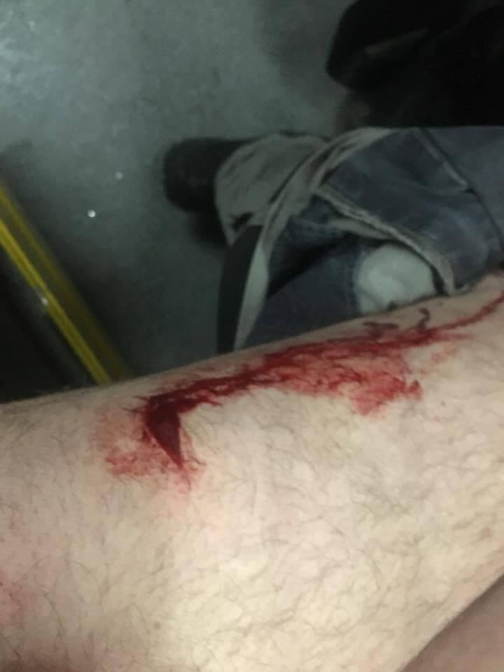 В Одесі напали на відомого активіста Стерненка