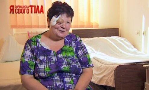 """""""Я соромлюсь свого тіла"""": как спасали выпадающий глаз"""