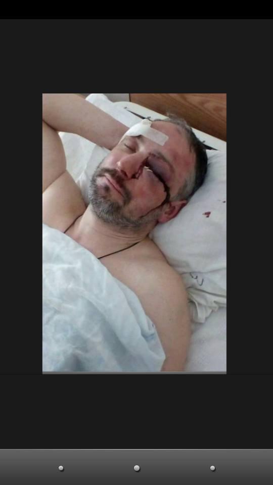 """В пострадавшем на разгоне """"Михомайдана"""" узнали афериста"""