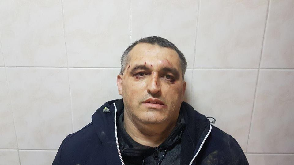 """Перейшов дорогу """"шишкам"""": в Чернівцях побили активіста"""