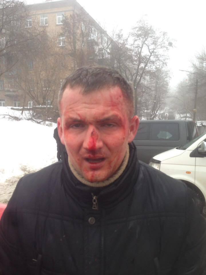 У Києві побили нардепа Левченка: подробиці