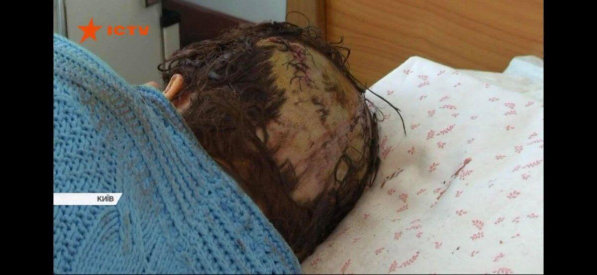 Спасла шапка: в Киеве женщину зверски избили молотком