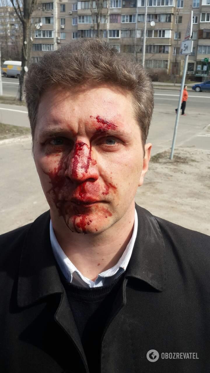 Дубль два: в Киеве зверски избили врача, рассказавшего о коррупции в медицине