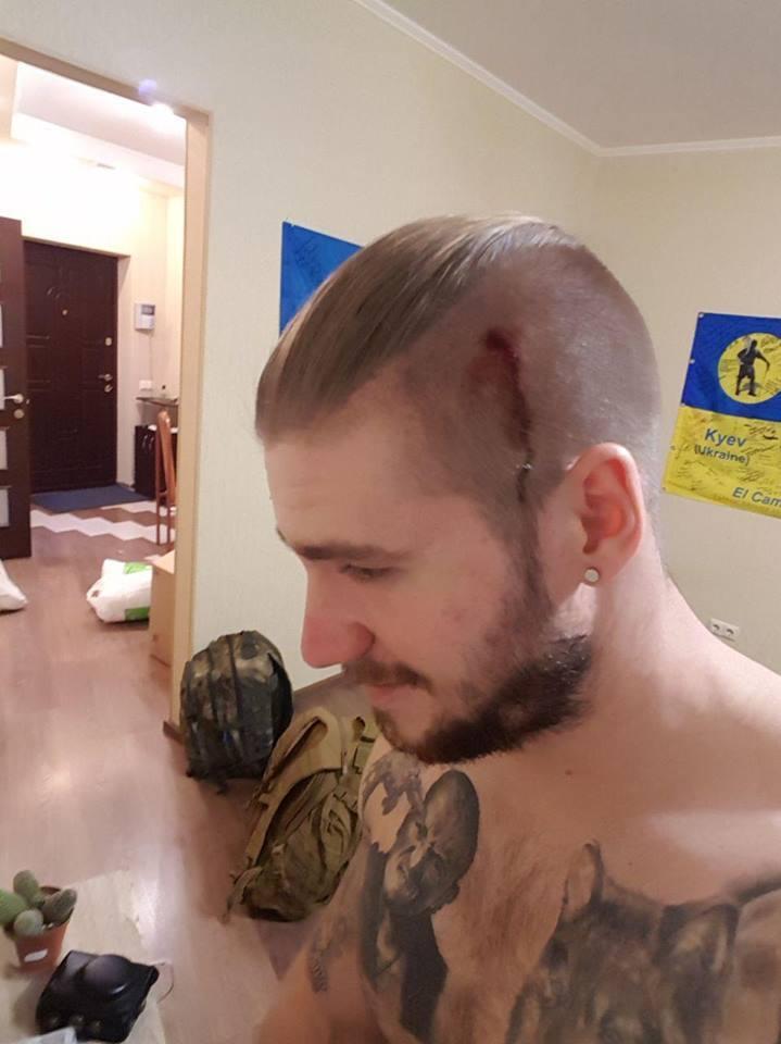 Боєць АТО розкрив деталі нападу на себе