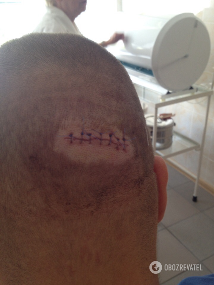 Медики наложили на рану семь швов