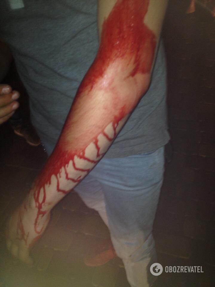 Кровь залила парню лицо и руки