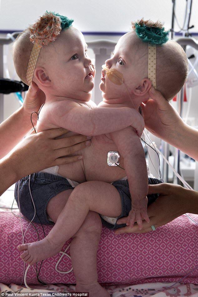 Сіамські близнюки в Гондурасі
