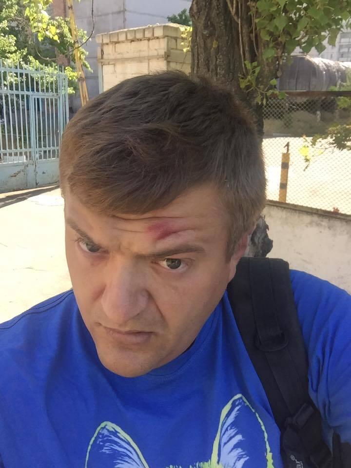 """""""Били сильно"""": в Херсоне напали на известного журналиста"""