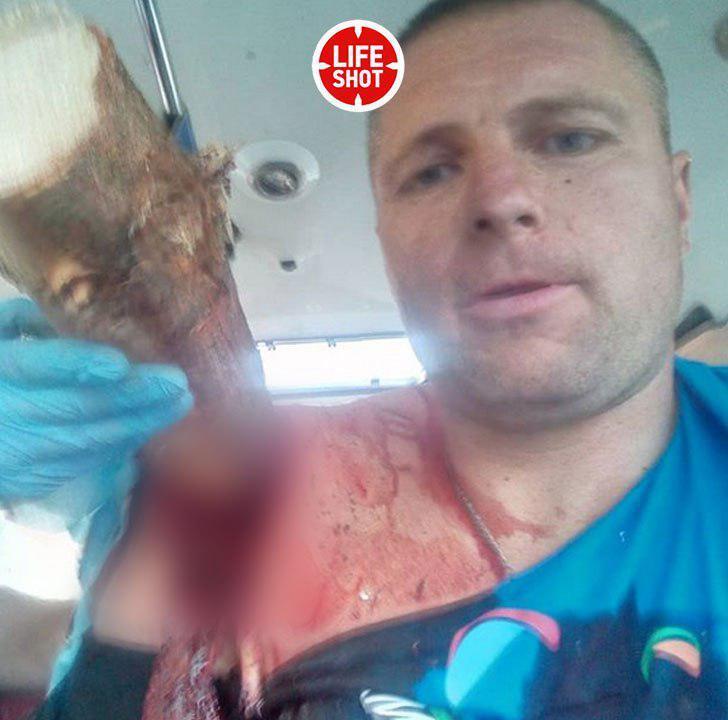 Экстремала из Беларуси насквозь пробило сосной