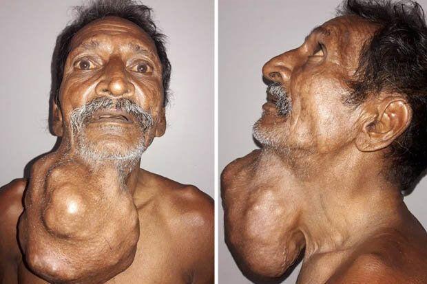 У чоловіка виросла пухлина розміром із голову