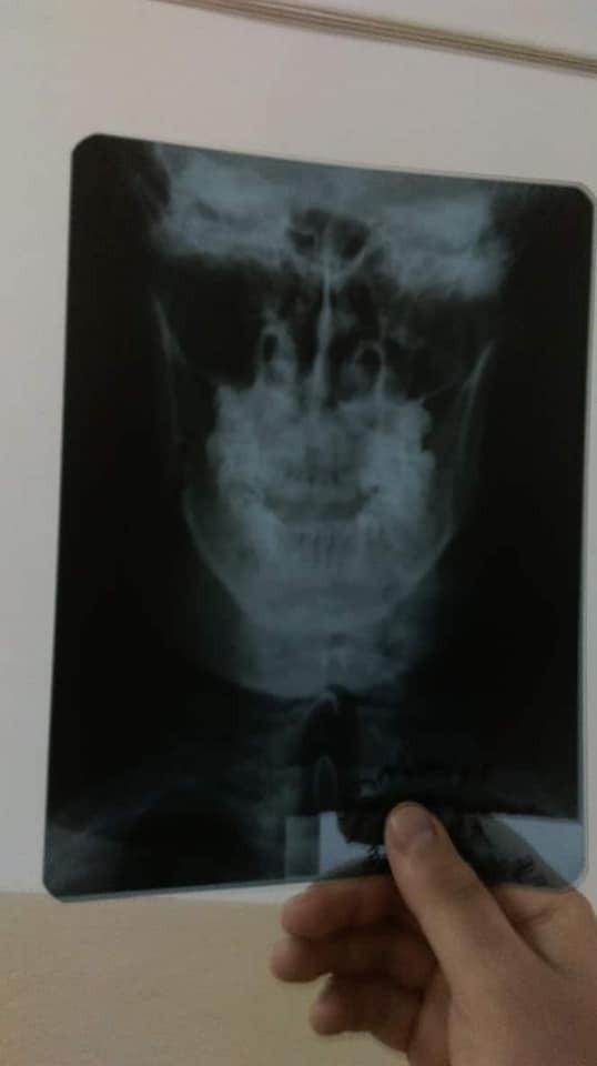Сломанная челюсть Бородиенко