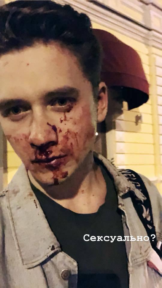 Лице залило кров'ю: у Києві побили активіста