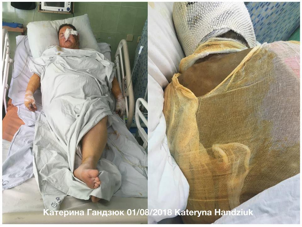 Первые фото Гандзюк из больницы